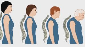 Spinal Posture