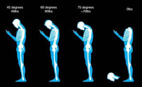 Tech Neck spinal posture