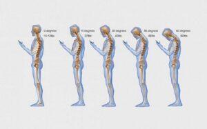 Tech Neck spinal health